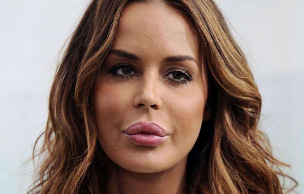 Botox, le star rovinate dalla chirurgia [FOTO]