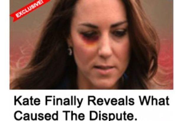 Kate Middleton, con un occhio nero: scandalo a corte [FOTO]